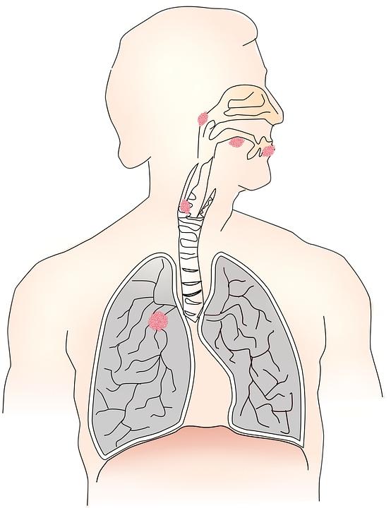 腰疼可能就是肾癌作祟如何快速检测自己是否患癌