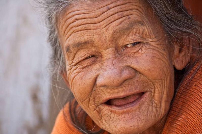 白醋泡生姜可以祛老年斑老年斑如何形成_
